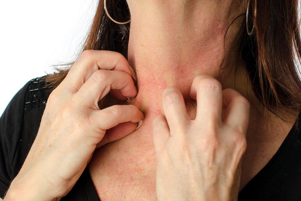 Qui peut intervenir lors d'une réaction allergique sévère?